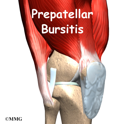 Prepatellar Bursitis | eOrthopod com
