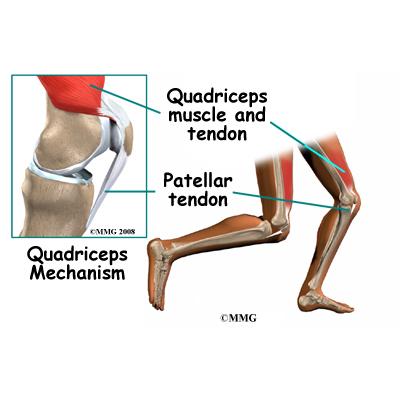 Quadriceps Tendonitis | eOrthopod.com