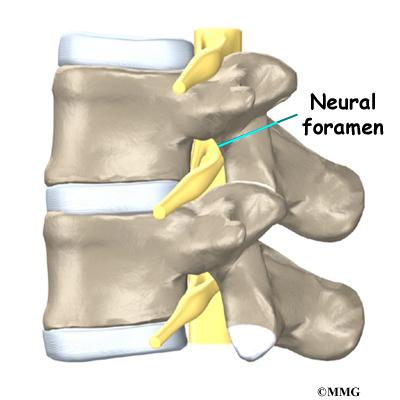 low back pain  eorthopod