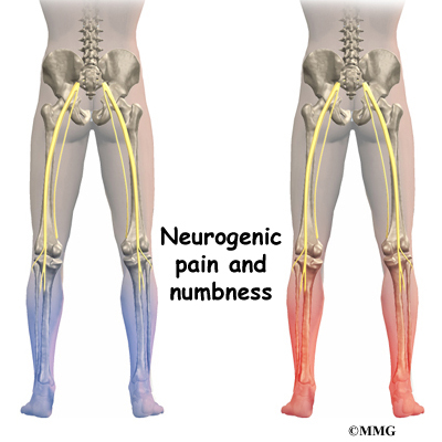 low back pain | eorthopod, Muscles