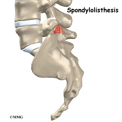 Spinal Conditions: Spinal Stenosis and Spondylolisthesis