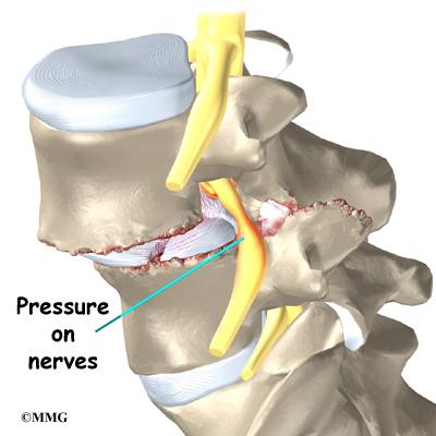 cracked facet joint nerve damage