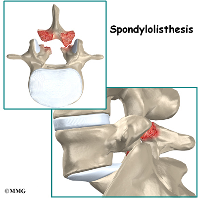 chronic lytic spondylothesis Spondylolisthesis denotes the slippage of one vertebra relative to the one below spondylolisthesis can occur anywhere but is most frequent, particularly when due to spondylolysis, at l5/s1 and to a lesser degree l4/l5.