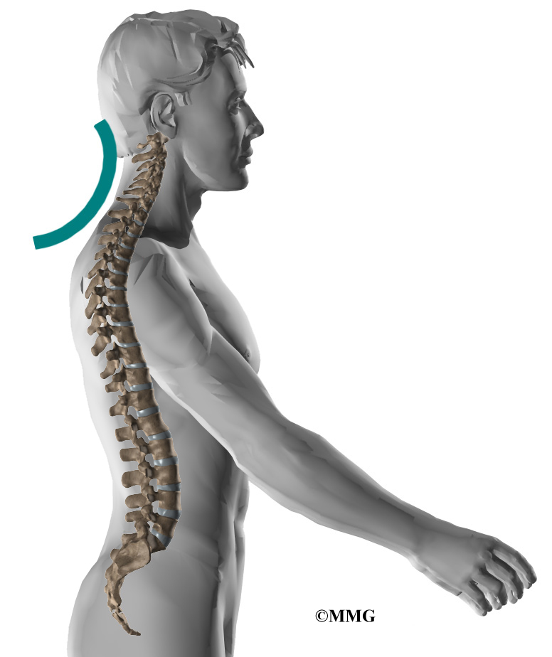 Neck Pain | eOrthopod.com