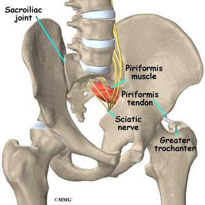 Piriformis Syndrome | eOrthopod.com