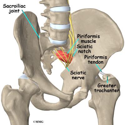Piriformis Muscle Injections Eorthopod