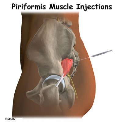 steroid injection in back muscle
