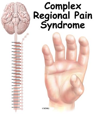 complex regional pain syndrome Complex regional pain syndrome (crps) is a long-term (chronic) pain condition that can affect any area of the body, but often affects an arm or a leg doctors are not sure what causes crps in some cases, the sympathetic nervous system plays an important role in the pain another theory is that crps.