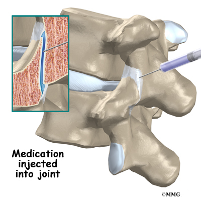 Facet Joint Injections | eOrthopod.com