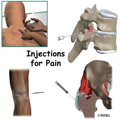 Блокада боли коленного сустава
