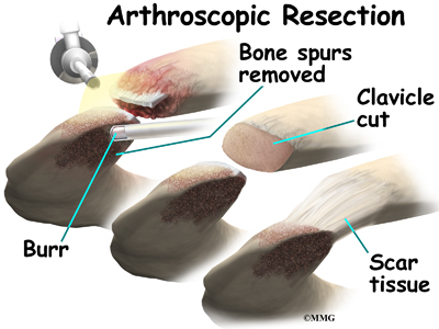 osteoarthritis of the acromioclavicular joint | eorthopod, Human Body