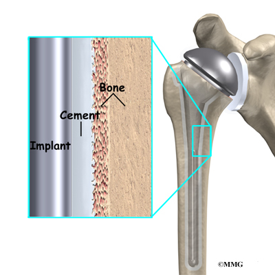 Artificial Joint Replacement of the Shoulder | eOrthopod.com