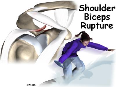 Biceps Rupture