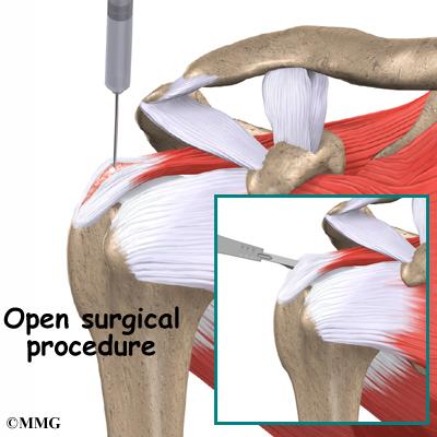 Calcific Tendonitis of the Shoulder | eOrthopod com