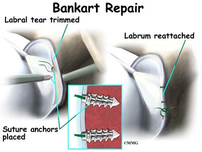 Shoulder Dislocations   eOrthopod.com