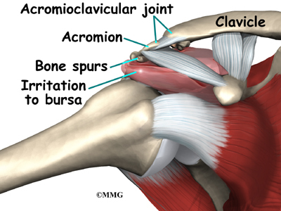 Impingement Syndrome | eOrthopod.com