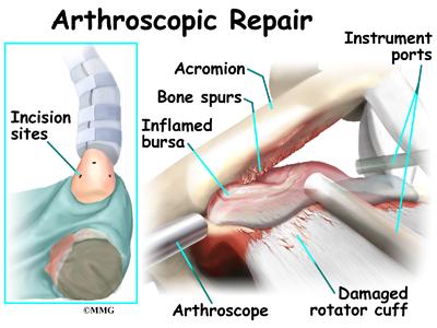 Torn Rotator Cuff Pain In Armpit