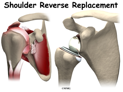 Reverse Shoulder Arthroplasty Eorthopod Com