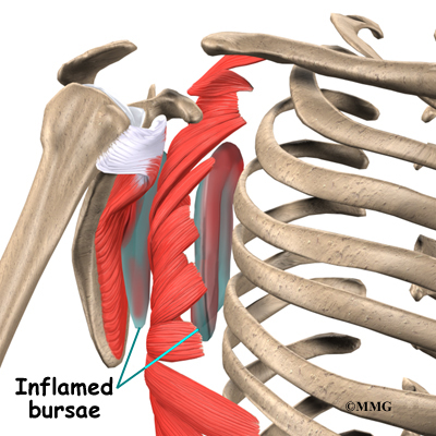 Snapping Scapula Syndrome