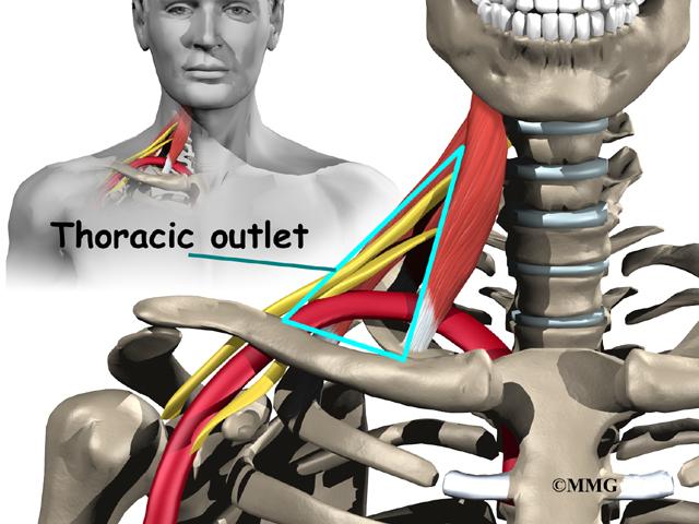 Thoracic Outlet Syndrome Eorthopod Com
