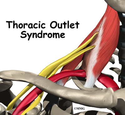Thoracic Outlet Syndrome | eOrthopod.com