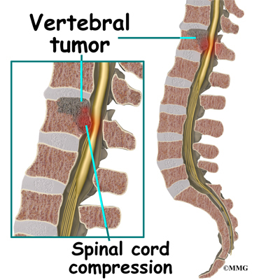 What are some symptoms of tumors on the spine?