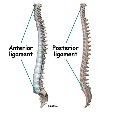 Diffuse Idiopathic Skeletal Hyperostosis