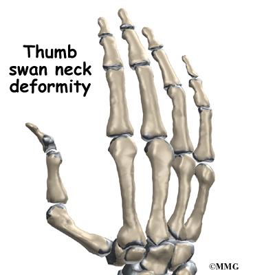 Arthritis of the Thumb
