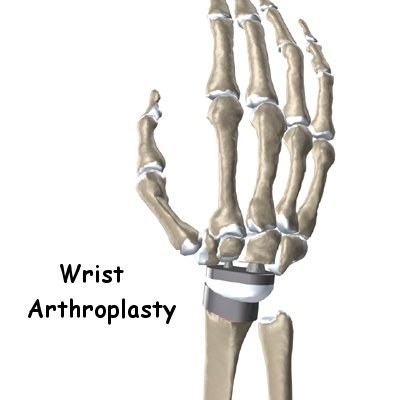 Wrist Joint Replacement Eorthopod