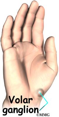 Ganglions of the Wrist | eOrthopod.com