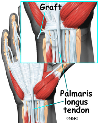 Wrist Ligament Injuries | eOrthopod.com