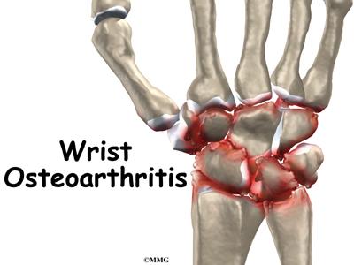 Wrist Joint Osteoarthritis