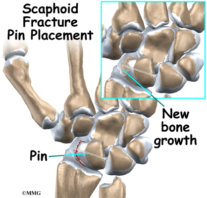 Scaphoid Fracture Of The Wrist Eorthopod