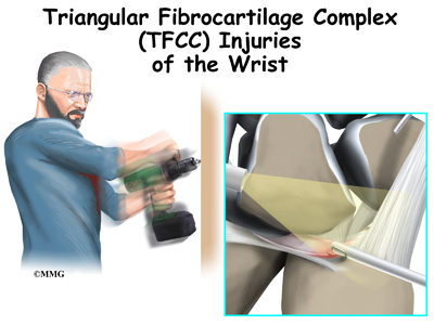 Triangular Fibrocartilage Complex Injuries