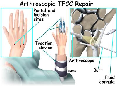 repair steroid damaged skin