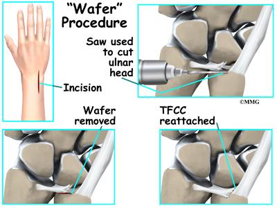 Triangular Fibrocartilage Complex Injuries